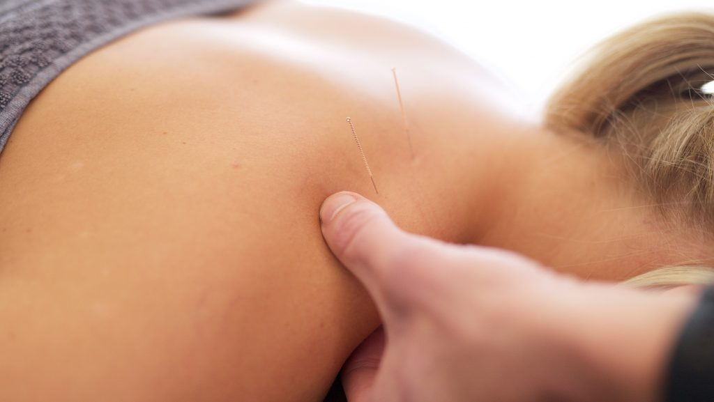 Dry Needling in Brighton, Adelaide